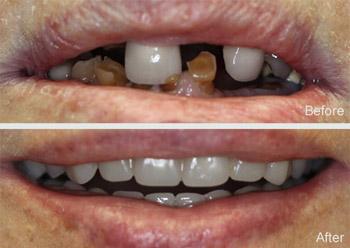 Dentures New Braunfels Tx Partials San Marcos Tx Comal Dental